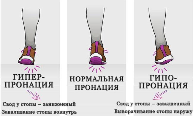 Виды пронации и их отличия